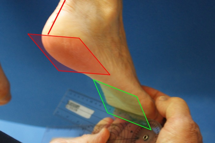 Foot and Foot Related Diagnosis